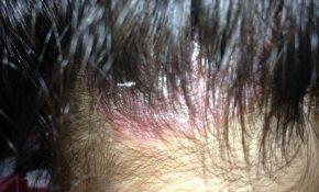 Người bị nấm da đầu có nên nhuộm tóc? Lời khuyên