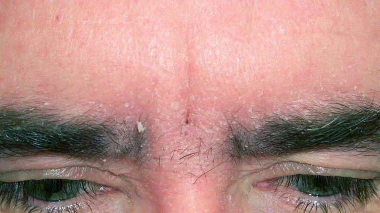 Viêm da dầu tiết bã được nhận định là bệnh mãn tính, khó chữa khỏi
