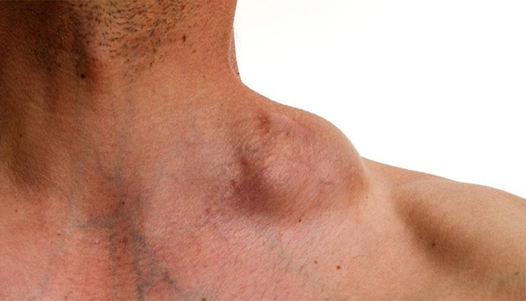 Dị ứng bia rượu dễ gặp ở người có chứng ung thư hạch Hodgkin