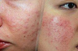Dị ứng da mặt: Nguyên nhân và các cách trị nhanh nhất