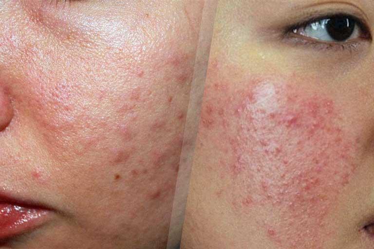 Dị ứng da mặt là bệnh lý về da phổ biến