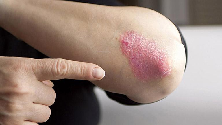 Vảy nến - bệnh lý mãn tính ngoài da gây sần sùi, bong tróc