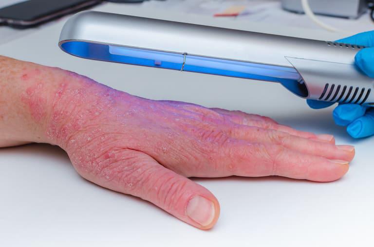Sử dụng tia UVB dải bước sóng rộng