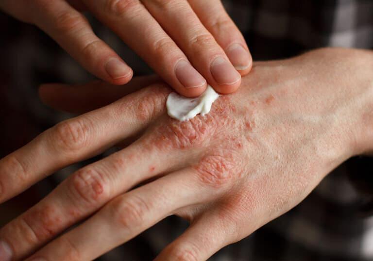 Thoa kem dưỡng ẩm lên vùng da bị tổn thương trước khi tiến hành chiếu đèn