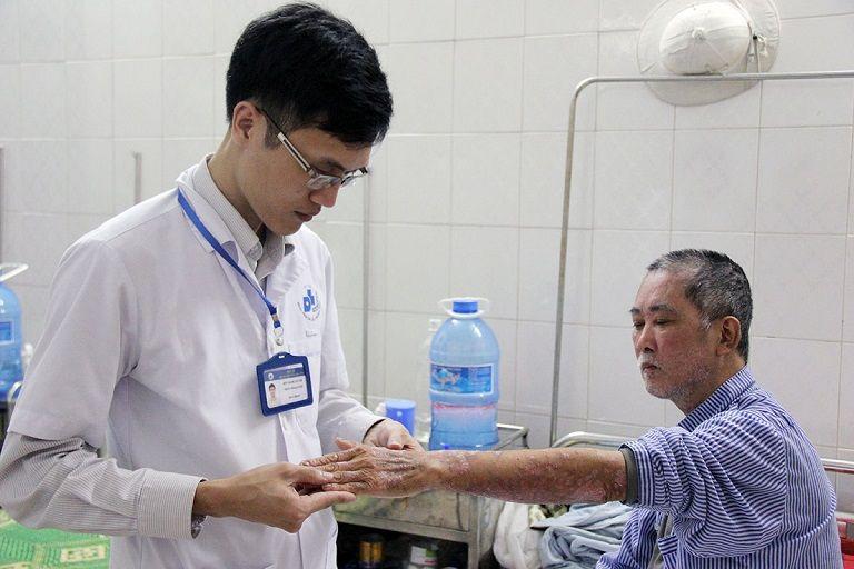 Chữa bệnh vảy nến bằng biện pháp gì cũng cần tham khảo ý kiến bác sĩ