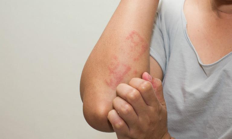 Tránh gãi hay chà mạnh lên vùng da bị tổn thương