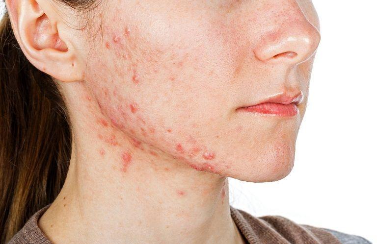 Viêm da tiếp xúc dị ứng là tình trạng da bị tổn thương do những di nguyên