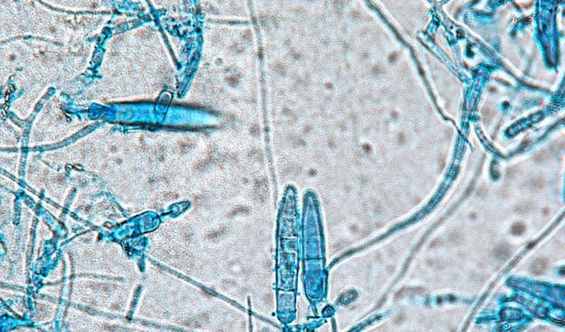 Nấm Trichophyton dưới kính hiển vi