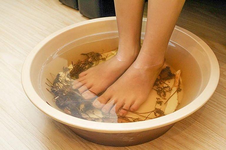 Người bệnh có thể áp dụng cách ngâm vết chàm vào nước lá trầu không để điều trị