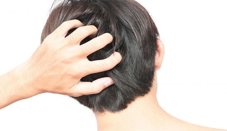 Da đầu ngứa kèm theo hiện tượng sưng đỏ là biểu hiện của nhiều bệnh lý