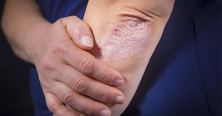Phương pháp tiêm sinh học chữa vảy nến được tiến hành dựa trên nguyên lý Y khoa hiện đại
