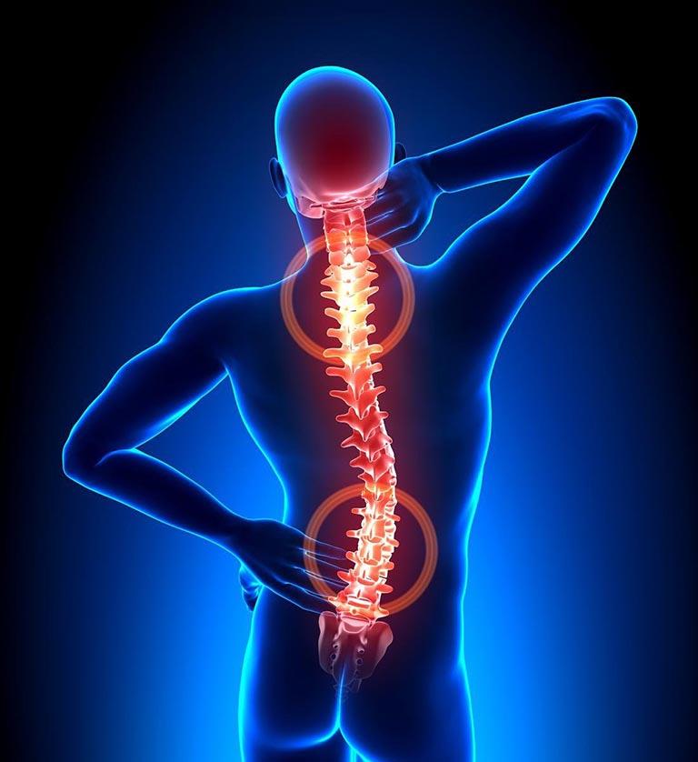 Thoái hóa cột sống chủ yếu ở lưng và cổ với những triệu chứng đặc trưng