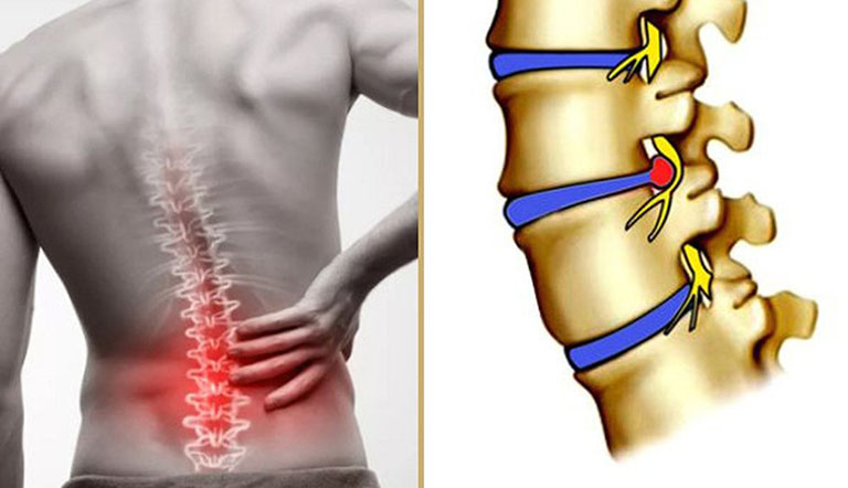 Thoát vị đĩa đệm gây ra những cơn đau nghiêm trọng tại thắt lưng, người bệnh khó vận động
