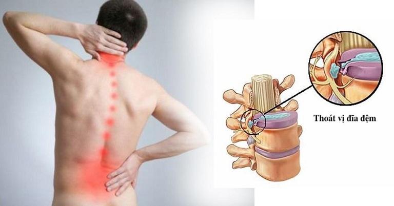 Thoát vị đĩa đệm gây ra nhiều ảnh hưởng tới sức khỏe và sinh hoạt người bệnh