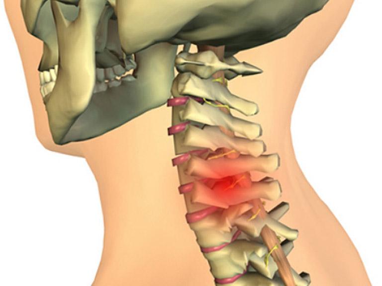 Thoát vị đĩa đệm đốt sống cổ khiến người bệnh đau mỏi cổ và vai gáy thường xuyên