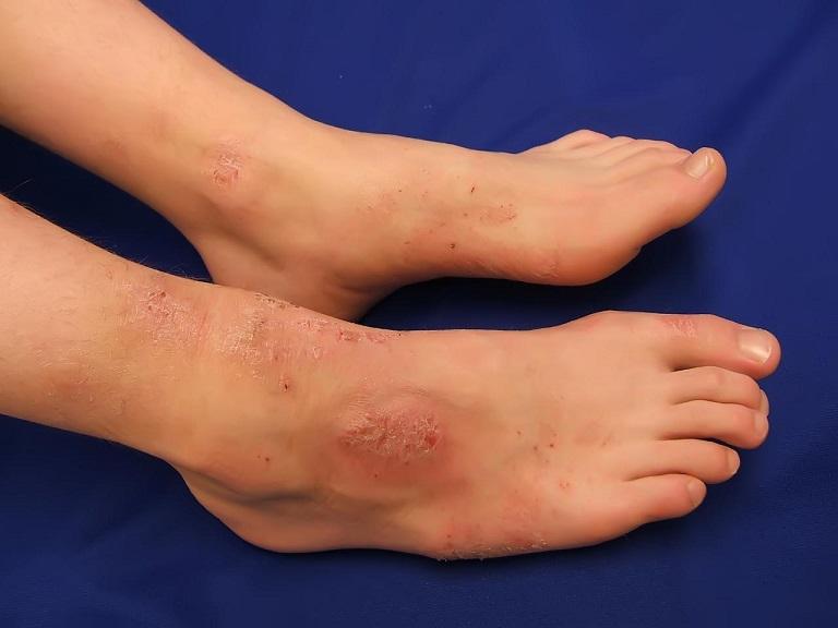 Viêm da cơ địa tắm lá gì để có thể loại bỏ được các triệu chứng của bệnh