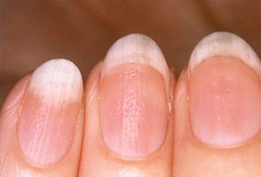 Bệnh vảy nến móng tay là gì