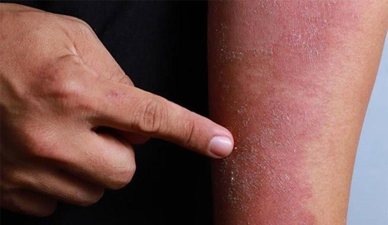 viêm da cơ địa có để lại sẹo không là vấn đề rất được quan tâm hiện nay