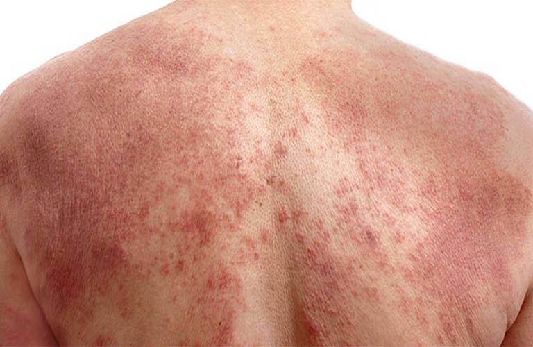 Nhiễm trùng là nguyên nhân khiến viêm da cơ địa để lại sẹo