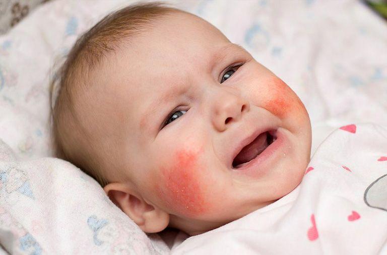 Viêm da cơ địa ở mặt khiến trẻ khó chịu quấy khóc