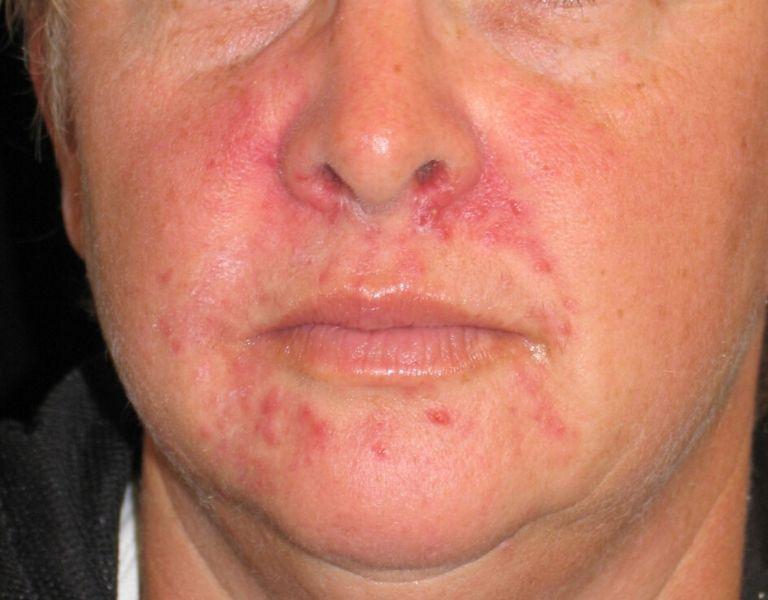 Viêm da cơ địa quanh miệng gây phát ban, nổi mẩn đỏ