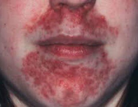 Bệnh viêm da cơ địa quanh miệng