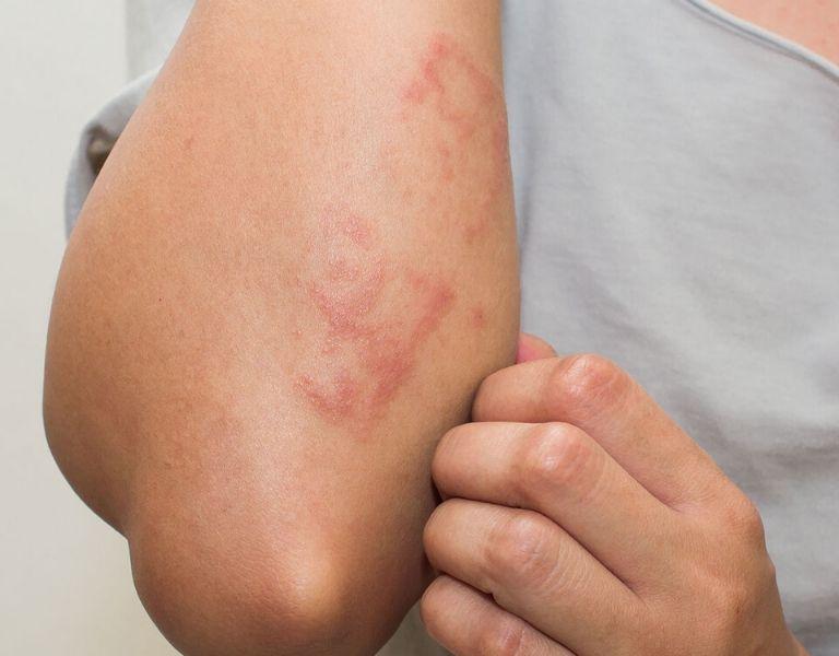 Sức đề kháng yếu là một trong những nguyên nhân gây bệnh viêm da cơ địa sau sinh