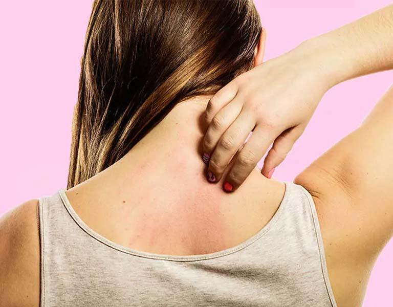 Viêm da cơ địa sau sinh không quá nguy hiểm nhưng triệu chứng bệnh dai dẳng, khó điều trị dứt điểm