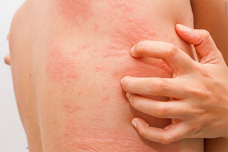 Các tổn thương có thể lan rộng ra vùng da xung quanh