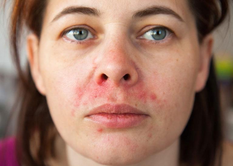Viêm da dầu ở 2 bên cánh mũi là bệnh da liễu phổ biến, xảy ra ở mọi đối tượng