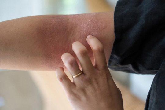 Viêm da tiếp xúc - bệnh lý ngoài da ở mọi đối tượng