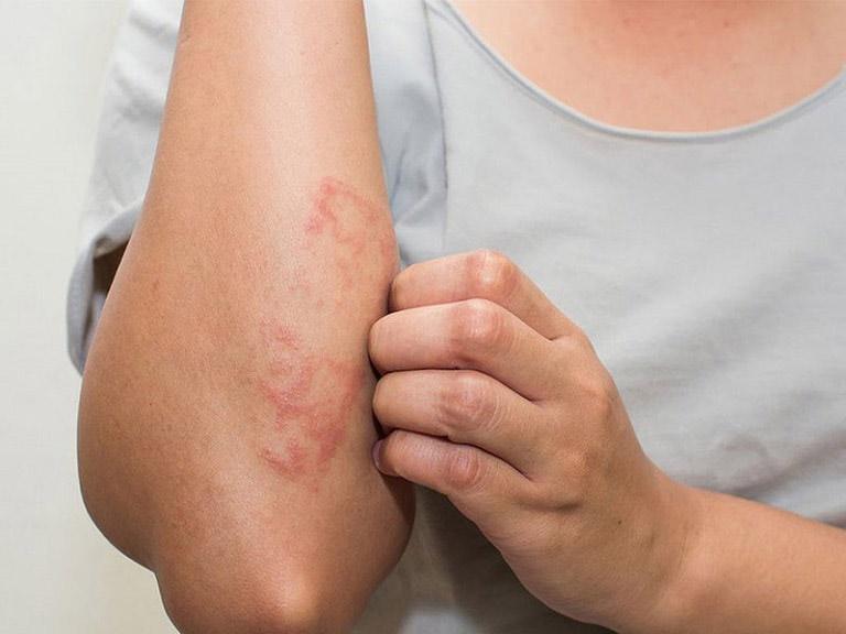 Viêm da tiếp xúc gây ngứa dữ dội trên da