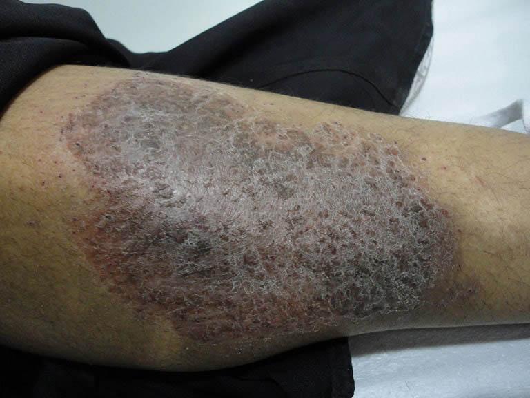 Viêm da tiếp xúc tiềm ẩn nhiều nguy cơ biến chứng nguy hiểm