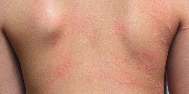 Viêm da tiếp xúc bao lâu thì khỏi còn phụ thuộc vào nhiều yếu tố