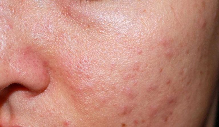 Nếu không được điều trị bệnh có thể điều trị sớm bệnh có thể gây nhiễm trùng trên da, để lại sẹo, thâm sạm
