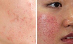 Viêm da tiếp xúc ở mặt là bệnh lý ngoài da phổ biến