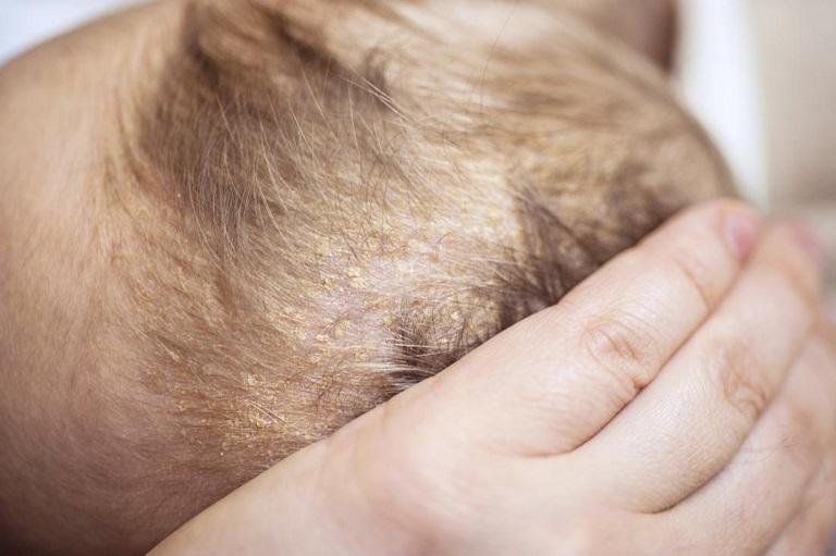 Viêm da tiết bã da đầu thường xuất hiện lúc nhỏ