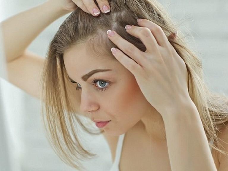 Viêm da tiết bã da đầu mang lại nhiều phiền toái
