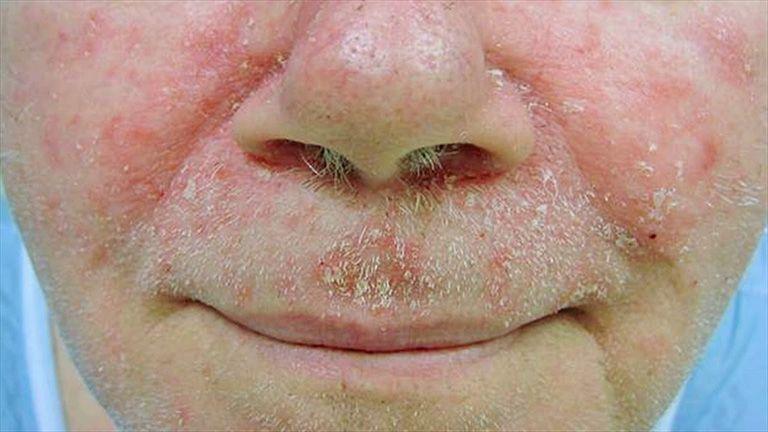 Viêm da tiết bã ở mặt chiếm tỉ lệ lớn trong số những người bị viêm da dầu tiết bã