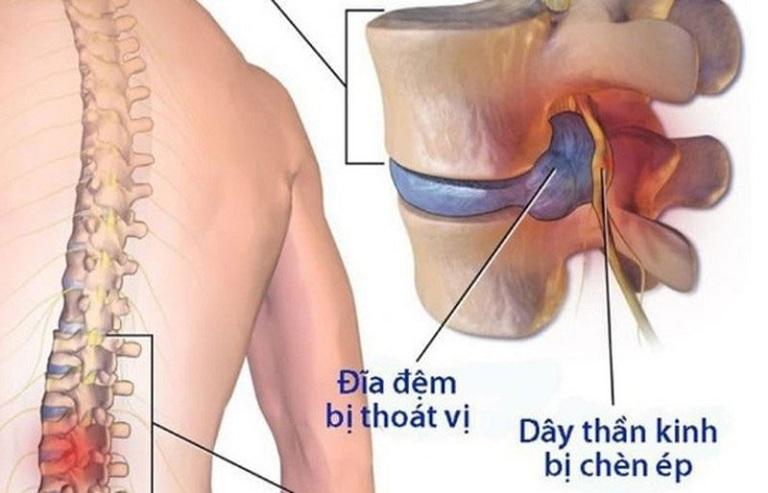 Thoát vị đĩa đệm là bệnh xương khớp thường gặp ở nhiều người