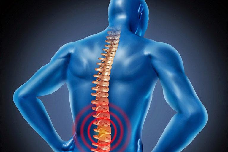 Các cơn đau dai dẳng cũng là biến chứng sau mổ thoát vị đĩa đệm cần quan tâm