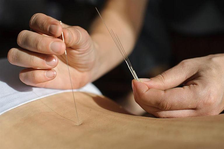 Phương pháp cấy chỉ chữa thoát vị đĩa đệm thường không gây đau và khả năng phục hồi nhanh