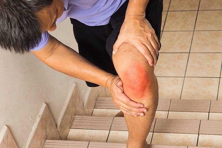 Khi bị đau khớp gối nặng, bác sĩ sẽ cân nhắc thay khớp gối nhân tạo cho bệnh nhân