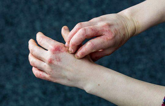 Ở giai đoạn chàm hóa, bề mặt của da sẽ trở nên xù xì và cộm cứng