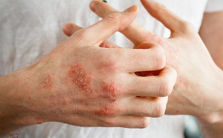 Hắc lào bị chàm hóa là giai đoạn bệnh trầm trọng và cần được điều trị kịp thời