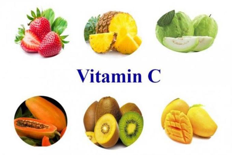 Khi bị thoát vị đĩa đệm nên bổ sung thực phẩm giàu vitamin C