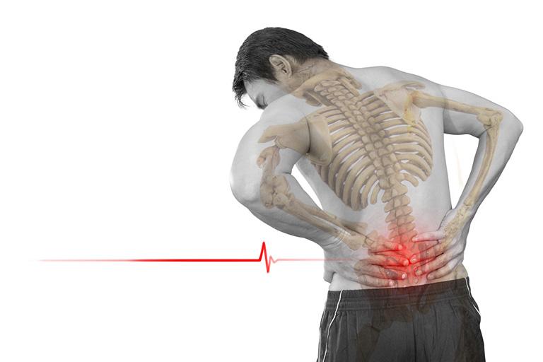 Nên đi khám và điều trị sớm tránh các biến chứng khi mắc bệnh xương khớp