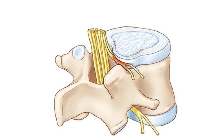 Phồng đĩa đệm có thể xảy ra ở mọi đối tượng khi cơ thể lão hóa