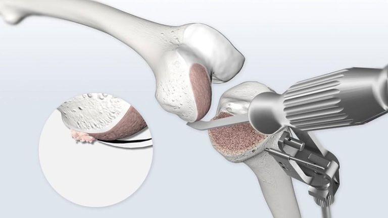 Thay khớp gối nhân tạo là phương pháp tối ưu sau khi các biện pháp điều trị khác không đạt kết quả