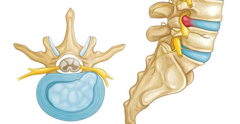 Thoát vị đĩa đệm L4,L5 là một dạng bệnh lý xương khớp phổ biến